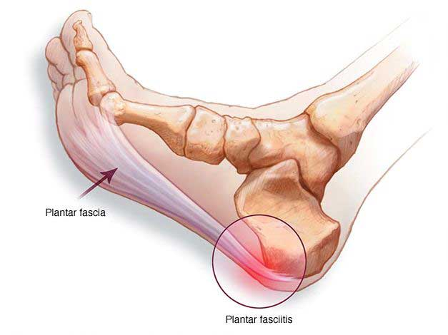 what is plantar fasciitis problem