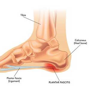 how to get rid of plantar fasciitis