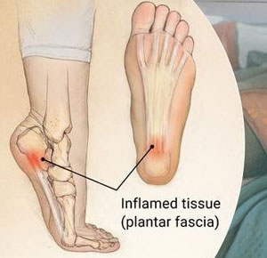 nursing shoes for plantar fasciitis