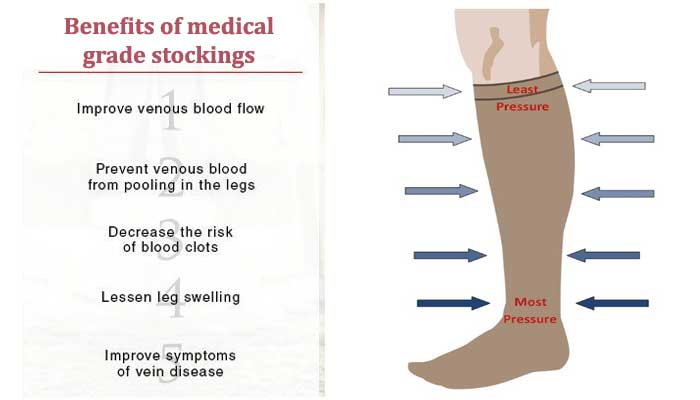 Best benefits of medical-grade stockings