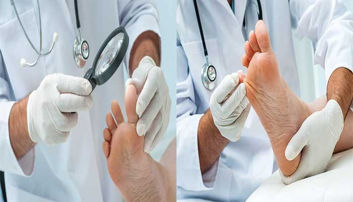 Do you need doctor's advice for smelly feet?