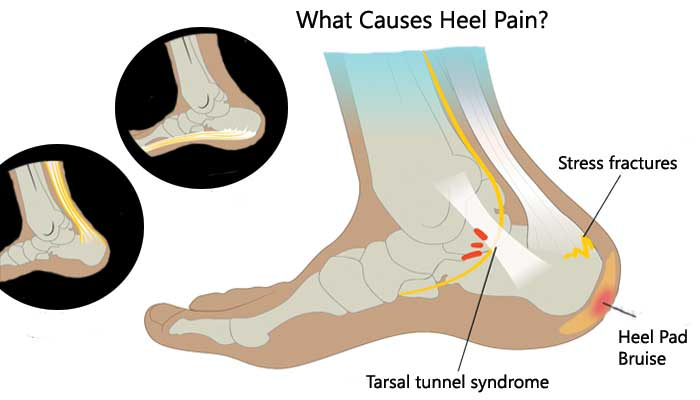 What is the cause of foot pain?