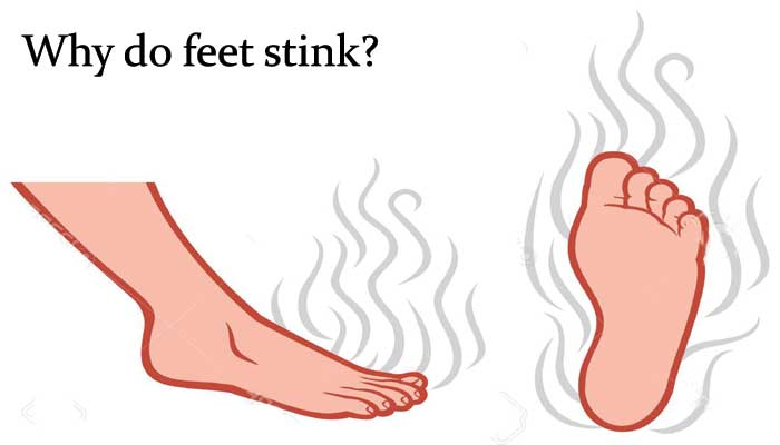 Why do my feet stink?